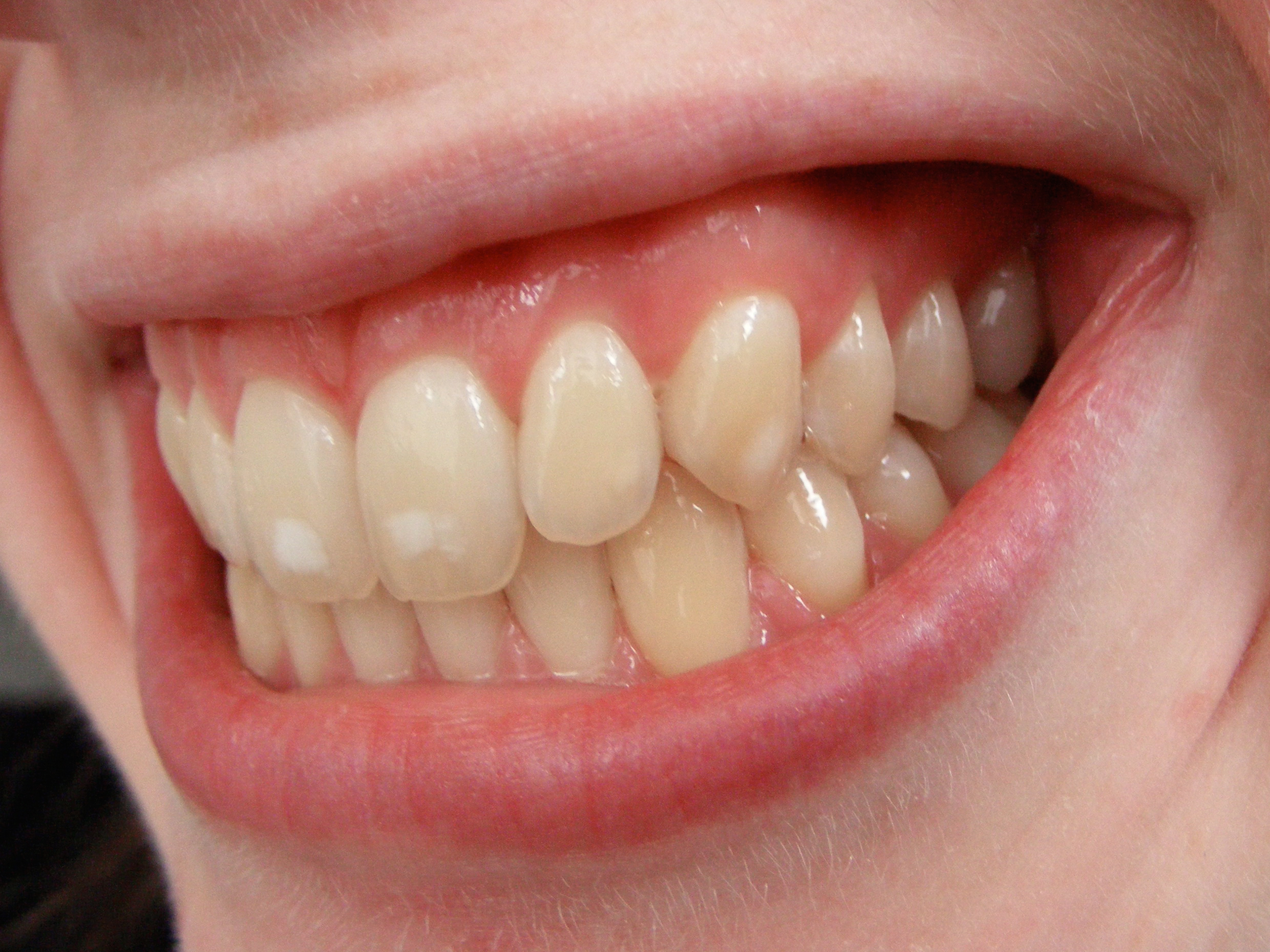 Description Dental fluorosis.jpg