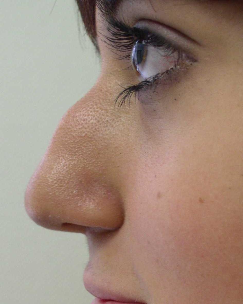 изменений фото фото носы с горбинками личности установлены, государства