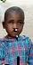 La piccola Clara prima della protesi oculare.jpg