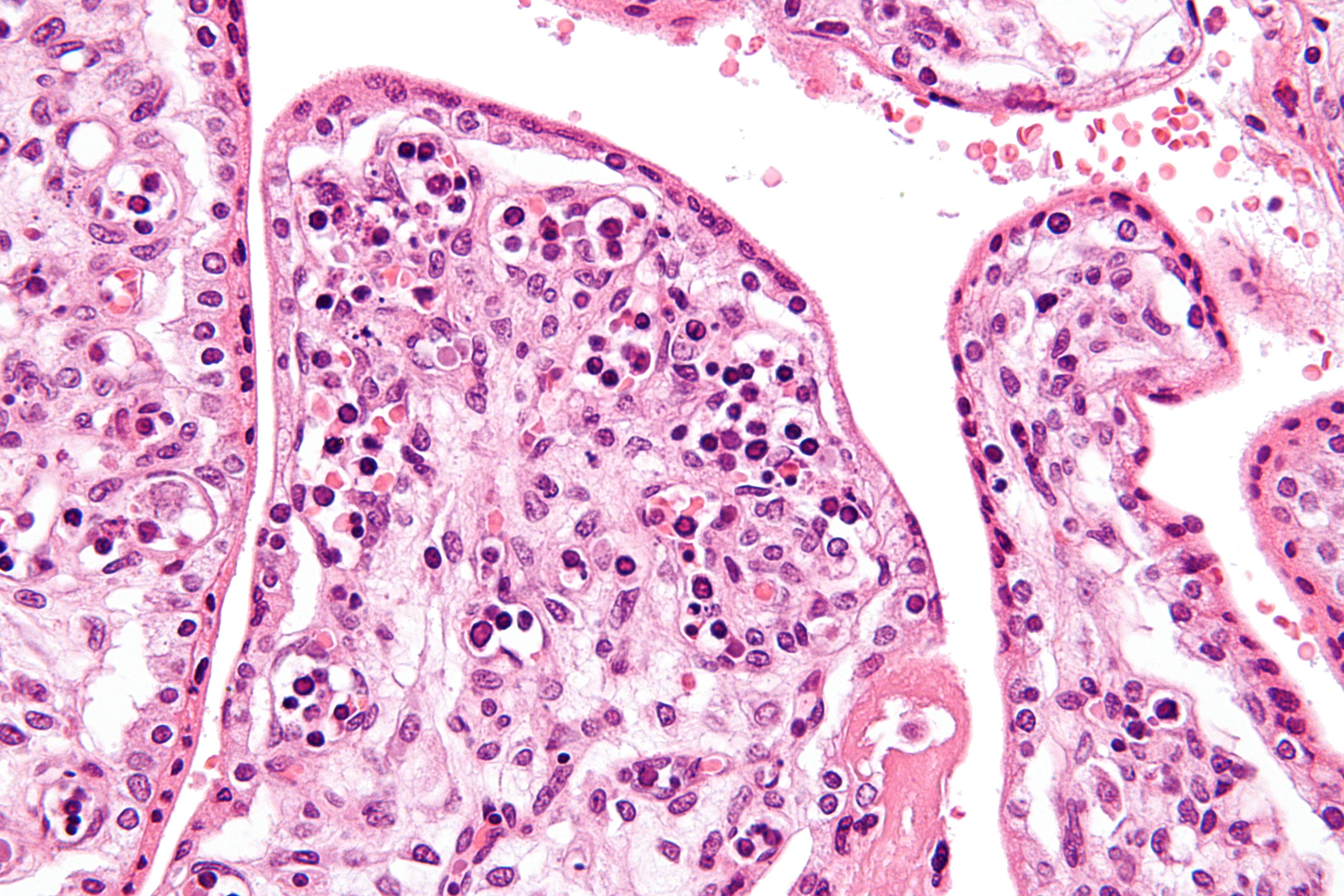 file parvovirus infection wo cond very high mag jpg wikimedia