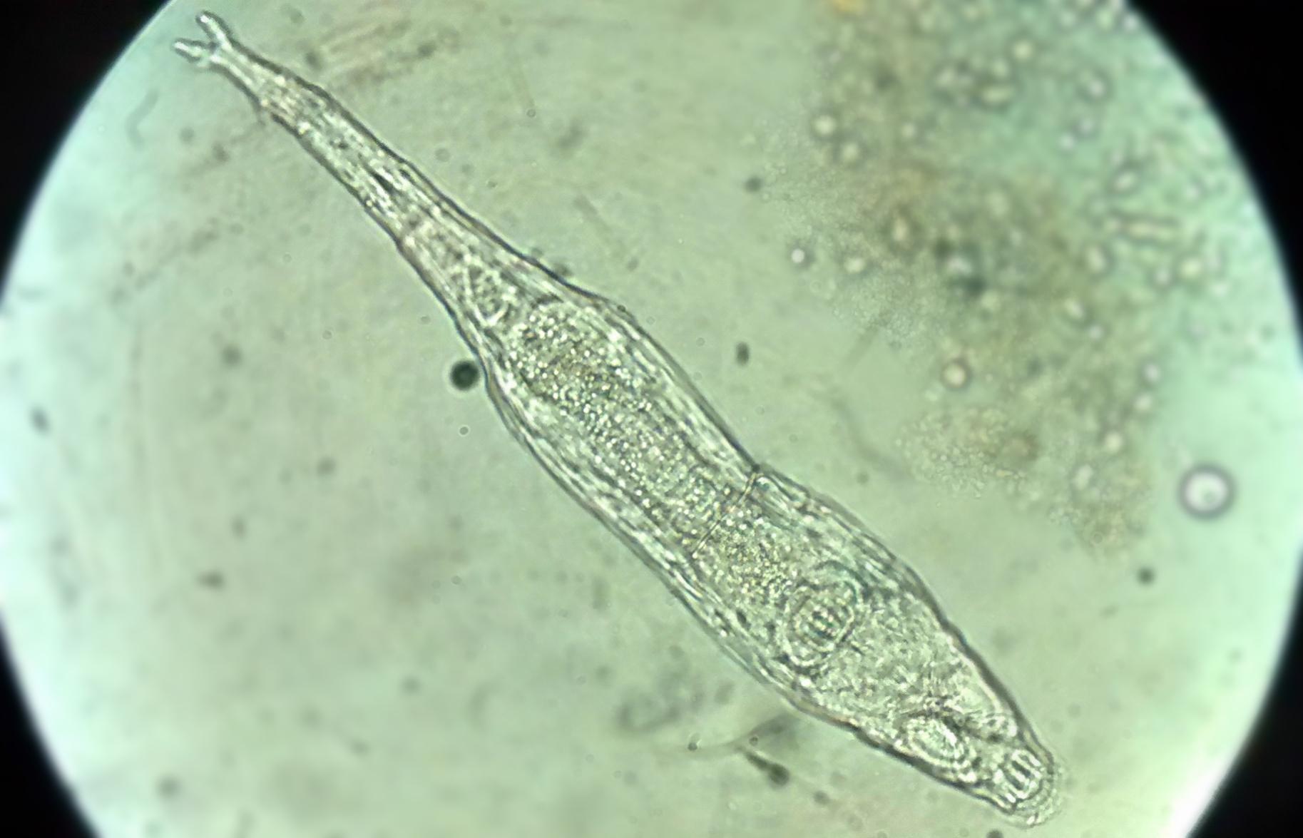 Animal resucita ¡después de 24 mil años congelado en la tundra! rotífero
