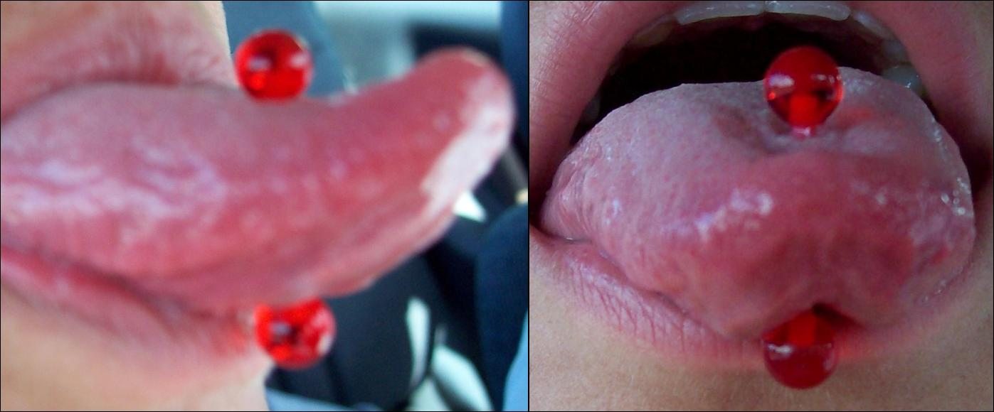 Is it ok to wear a plastic barbell in your tongue?