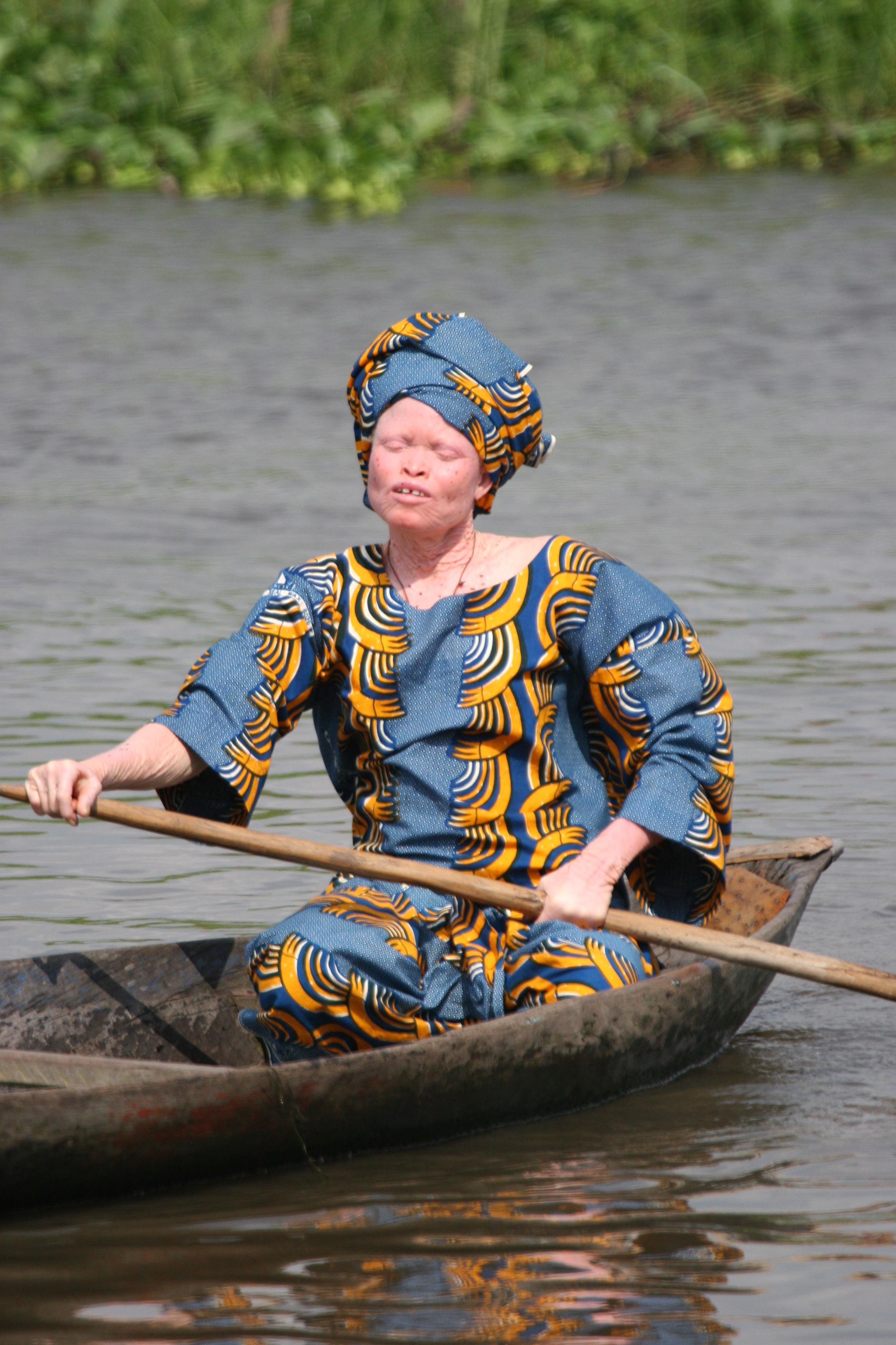 Frau mit Albinismus in Benin. (Quelle: Ferdinand Reus via Wikimedia Commons unter CC-BY-SA 2.0 Lizenz)
