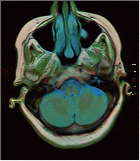 Brain MRI 0038 16 t1 pd t2.jpg