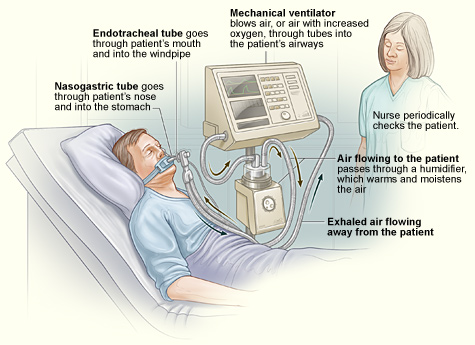 File:Ventilators.jpg - Wikimedia Commons