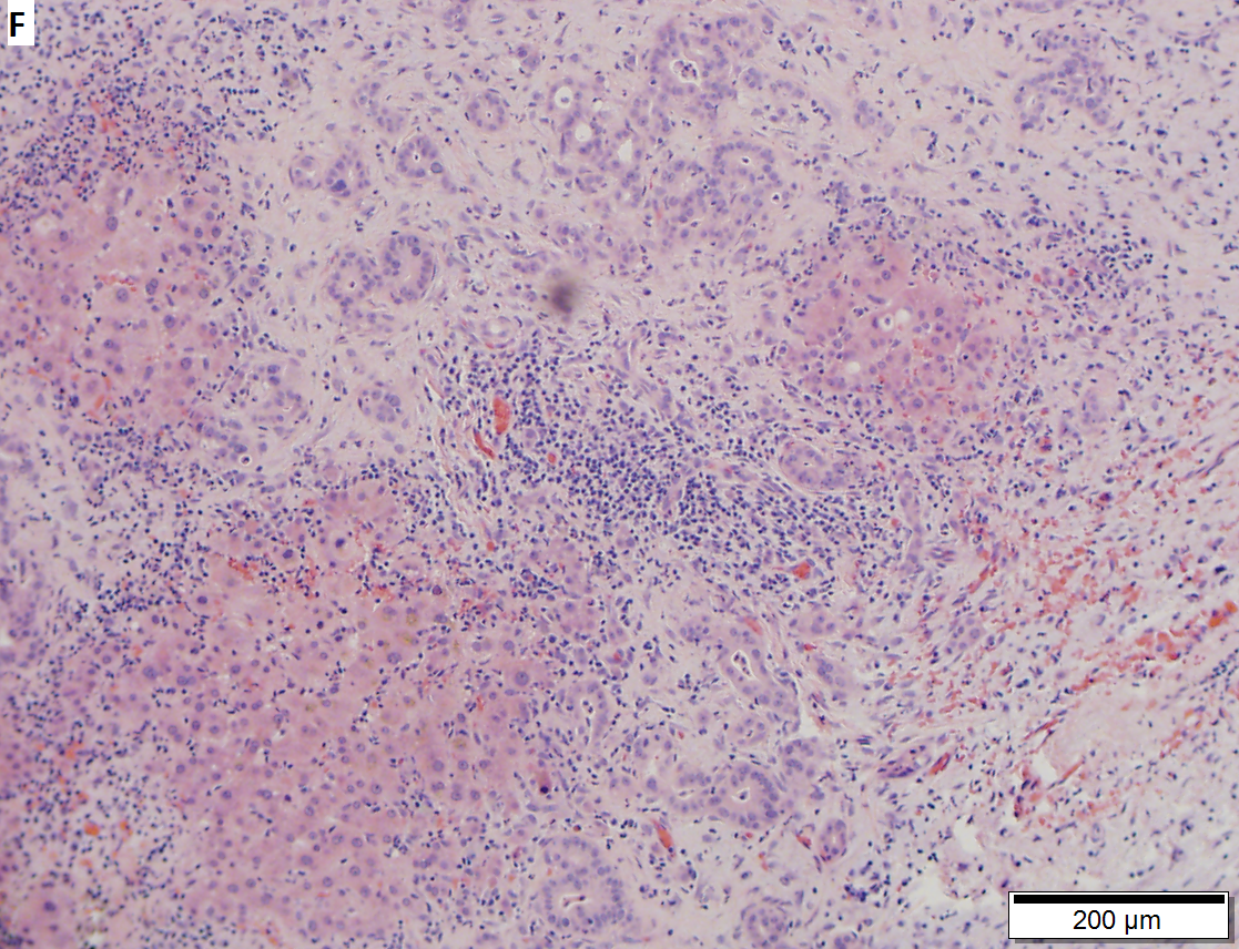 Moderately differentiated adenocarcinoma of gallbladder