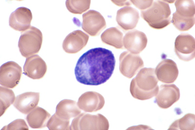 Fichier:Activated lymphocytes-2.JPG — Wikipédia