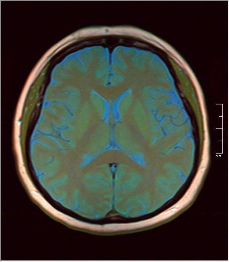 Brain MRI 0133 08.jpg