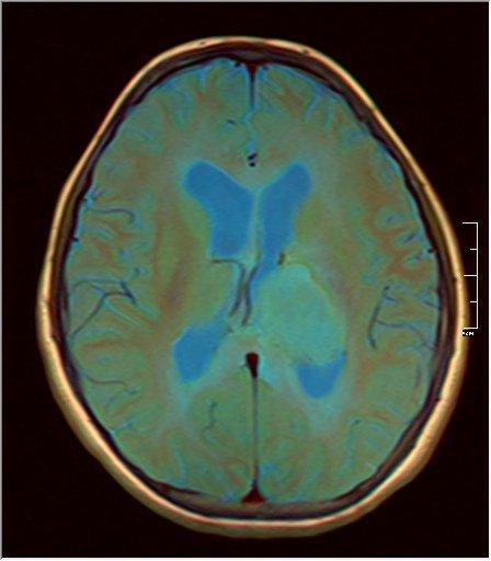 Brain MRI 0199 09.jpg