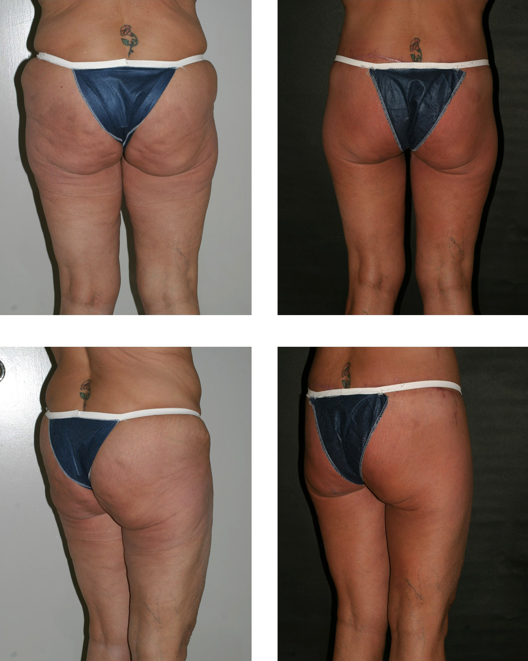 Description Dr. Placik Buttock Lift.jpg