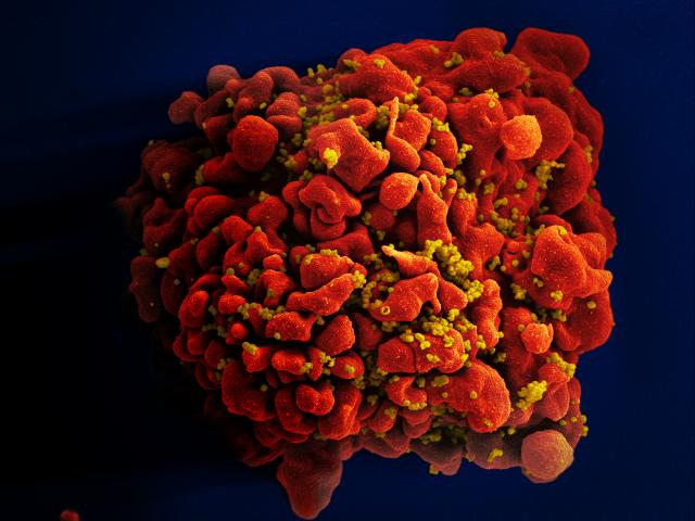 HIV-infected H9 T Cell NIAID