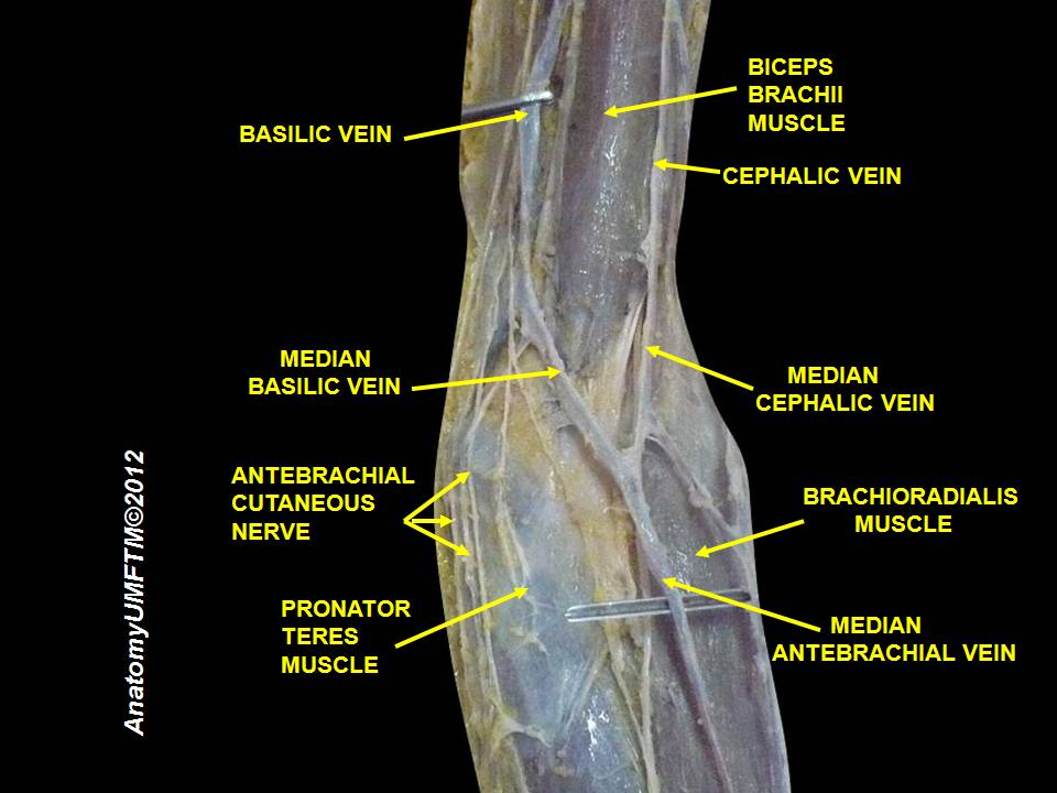 File:Middle and distal third of the left biceps brachii ...