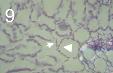Mycosphaerella graminicola 9.png