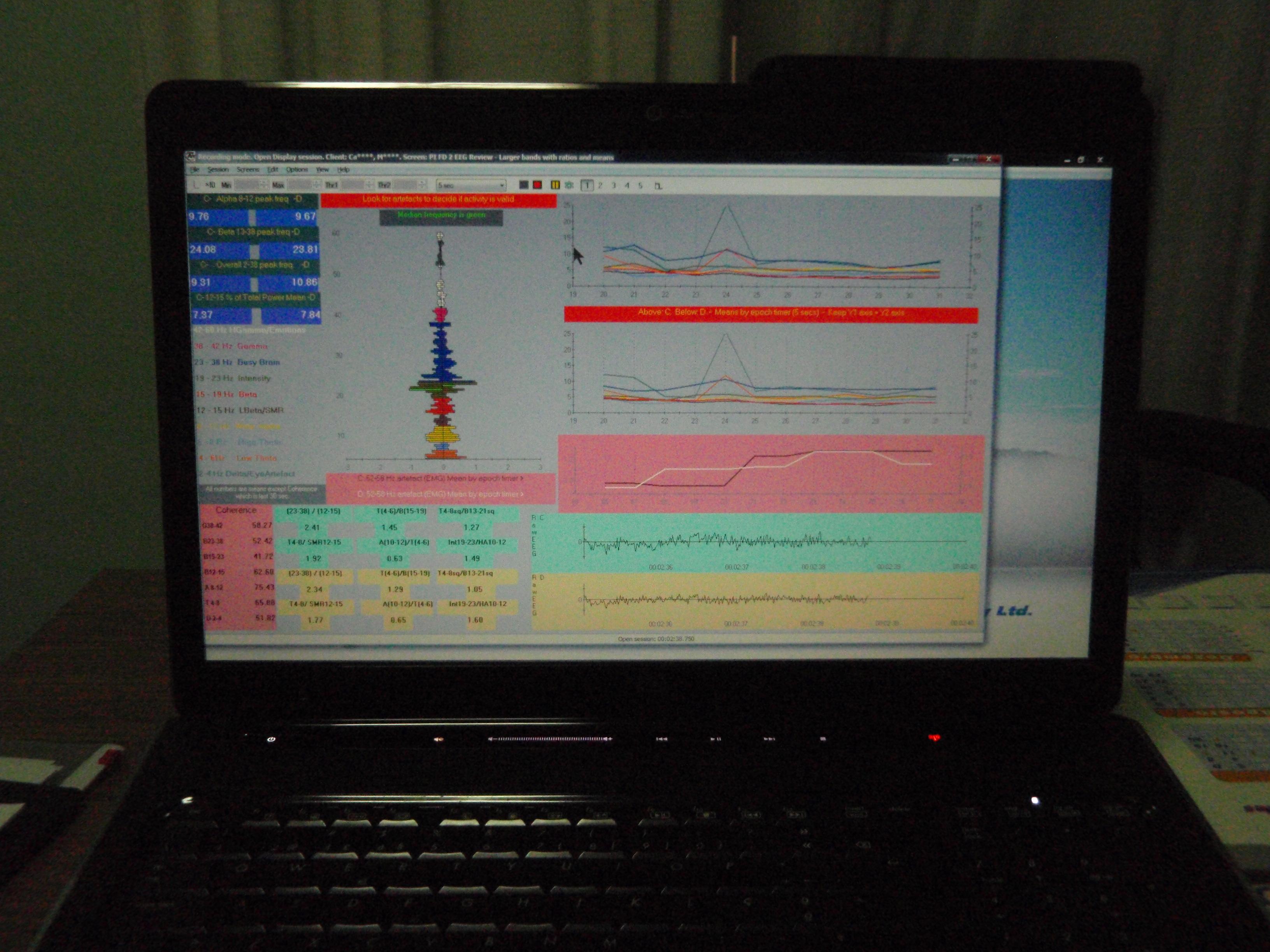 z score neurofeedback clinical applications