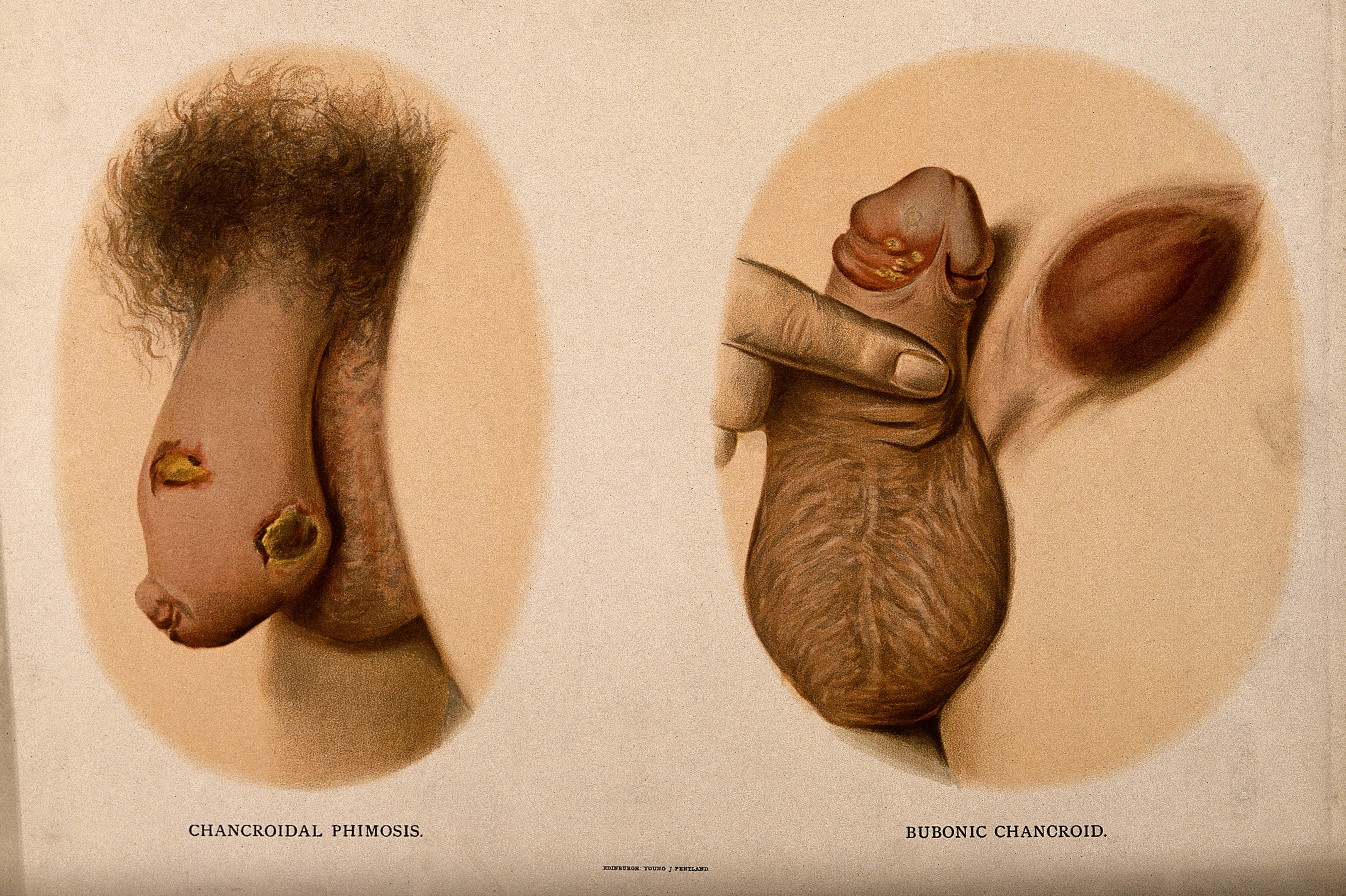 File:A penis with patches of skin disease along the shaft; and an Wellcome