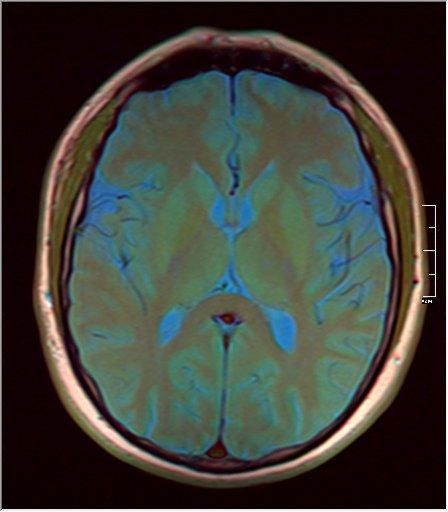 Brain MRI 0143 09.jpg