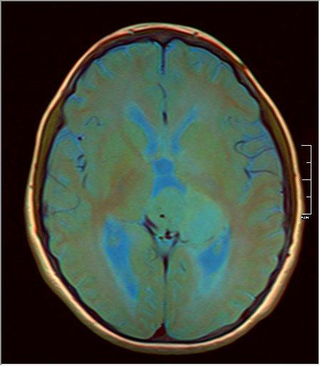 Brain MRI 0199 11.jpg