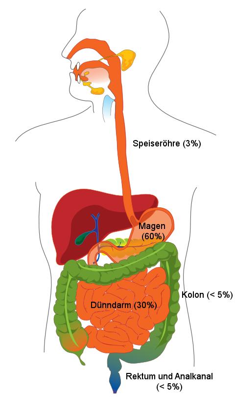 Gastrointestinaler Stromatumor Wikiwand