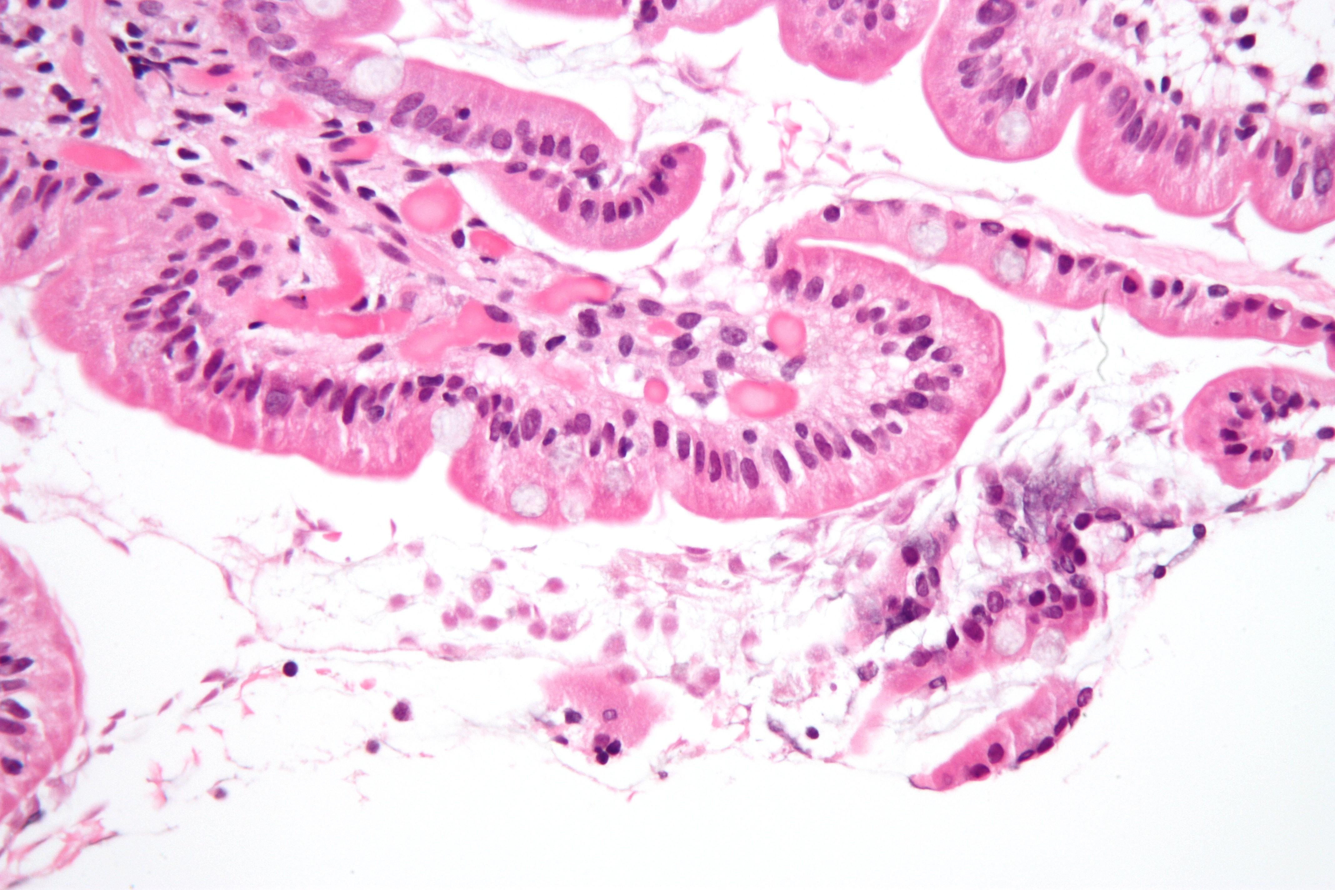 Cryptosporidium Parasite File:Giardiasis duoden...