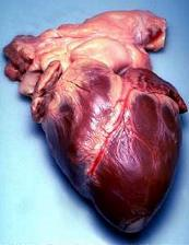 Human heart removed from a 64-year-old male.