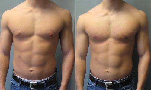 FileImpending Gynecomastia Puffy Nipplesjpg