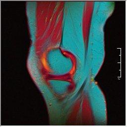 Knee MRI 0025 04 pdfs t1 t2 59f.jpg
