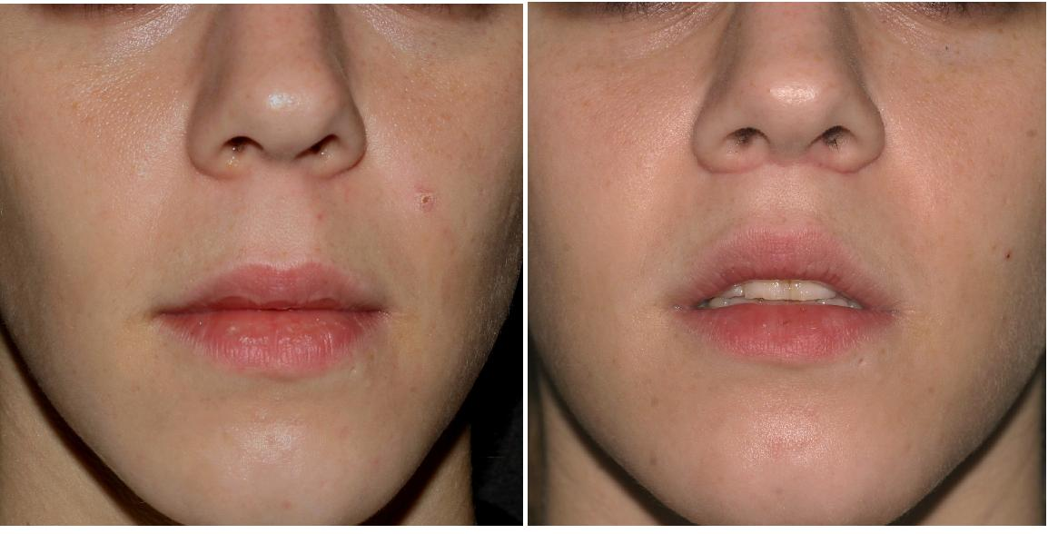 Eupgoria Cosmedic lip injections