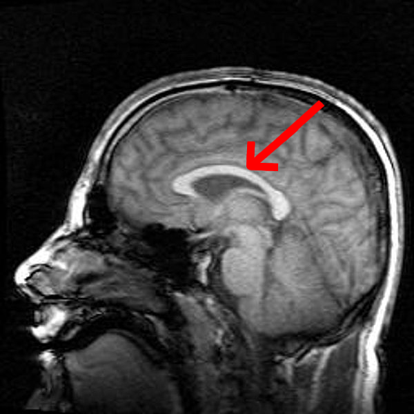 File:Mri brain side view-emphasizing-corpus-callosum.png - Wikimedia ...