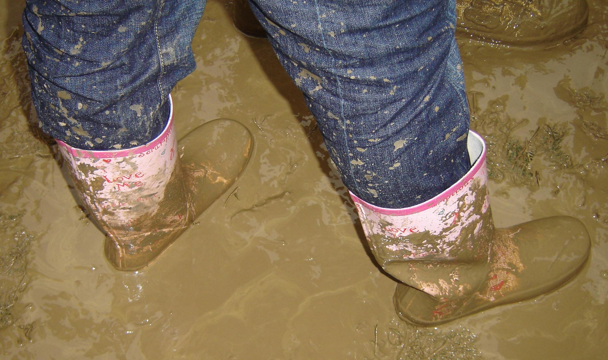 foot conditions in children
