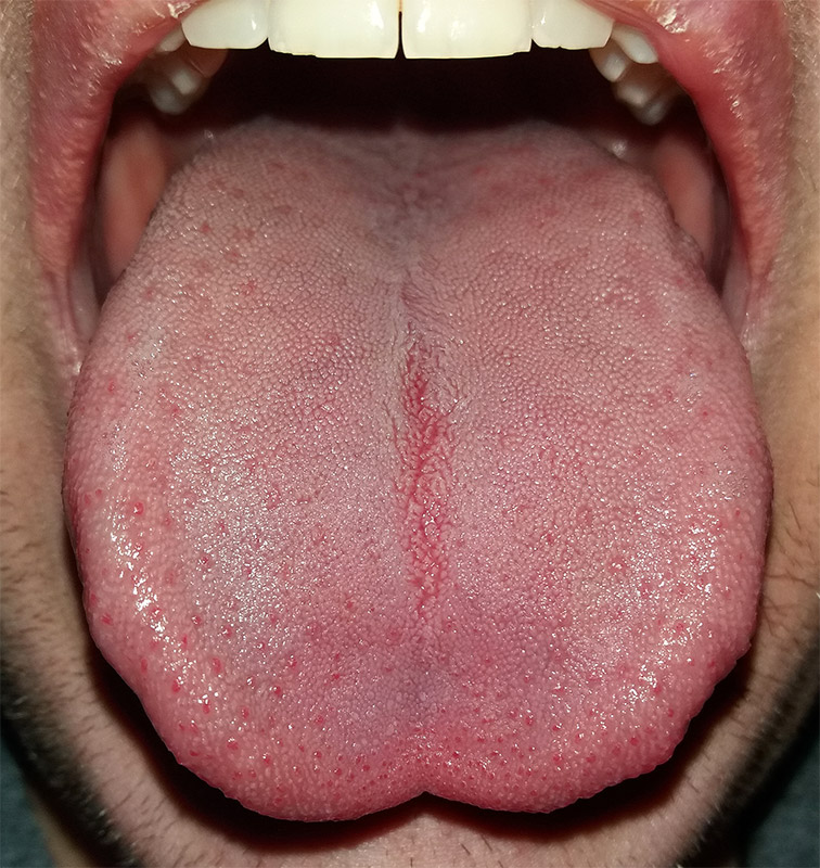 Tongue Wikipedia