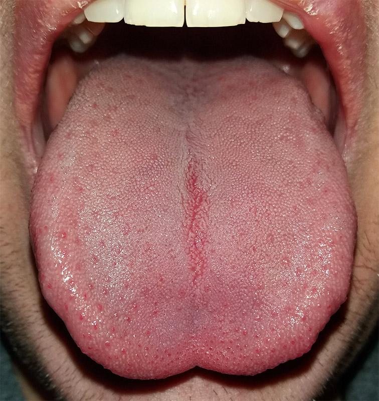 Lengua (anatomía) - Wikiwand