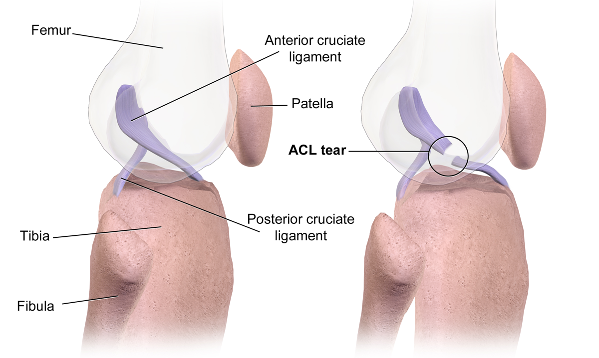 ACL tear diagram