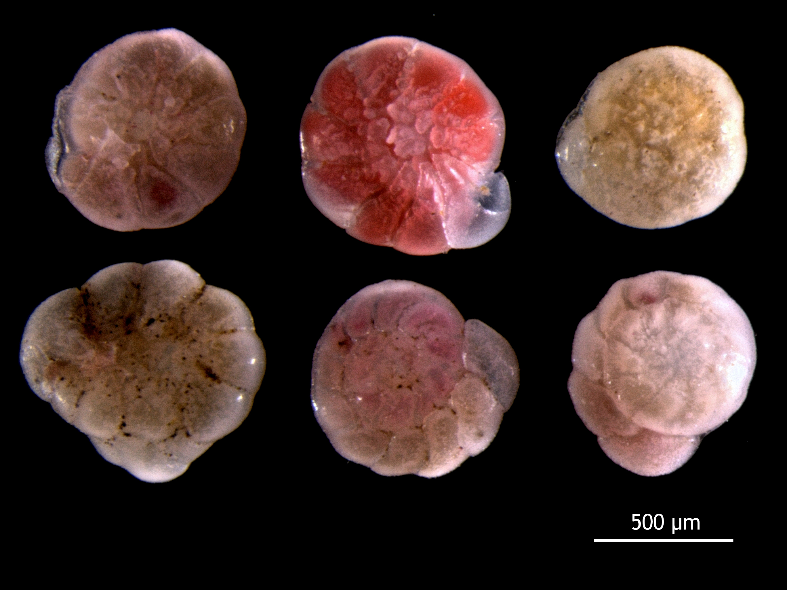 Foraminifera asexual reproduction in humans