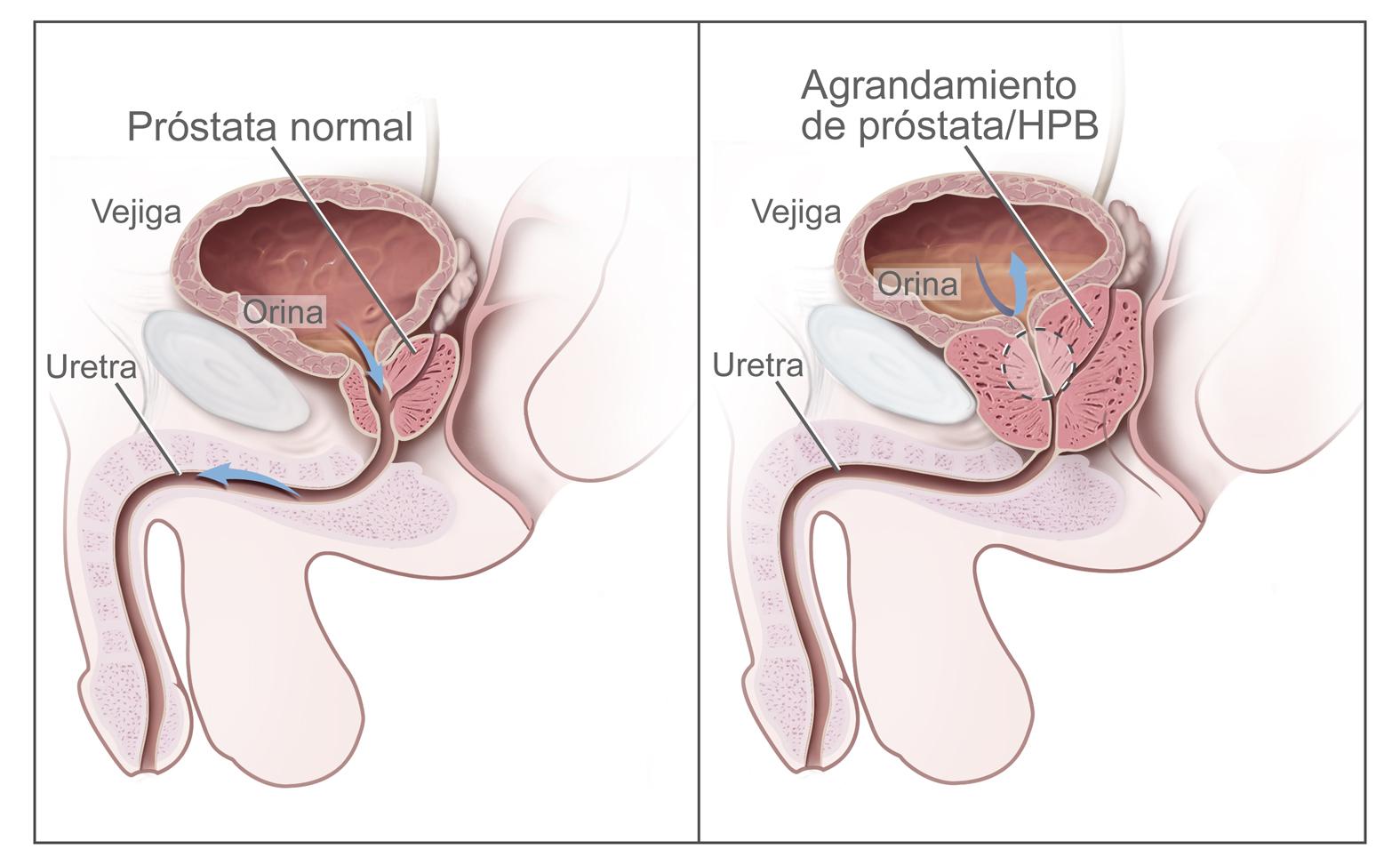 anatomías prostáticas de la