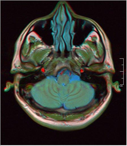 Brain MRI 0249 16.jpg