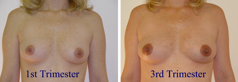 your breast after pregnancy