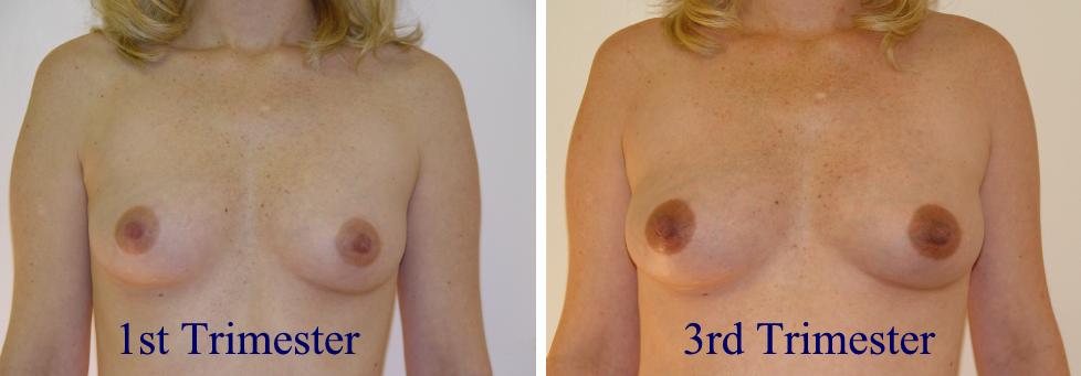 leaking breast after pregancy how long jpg 1200x900