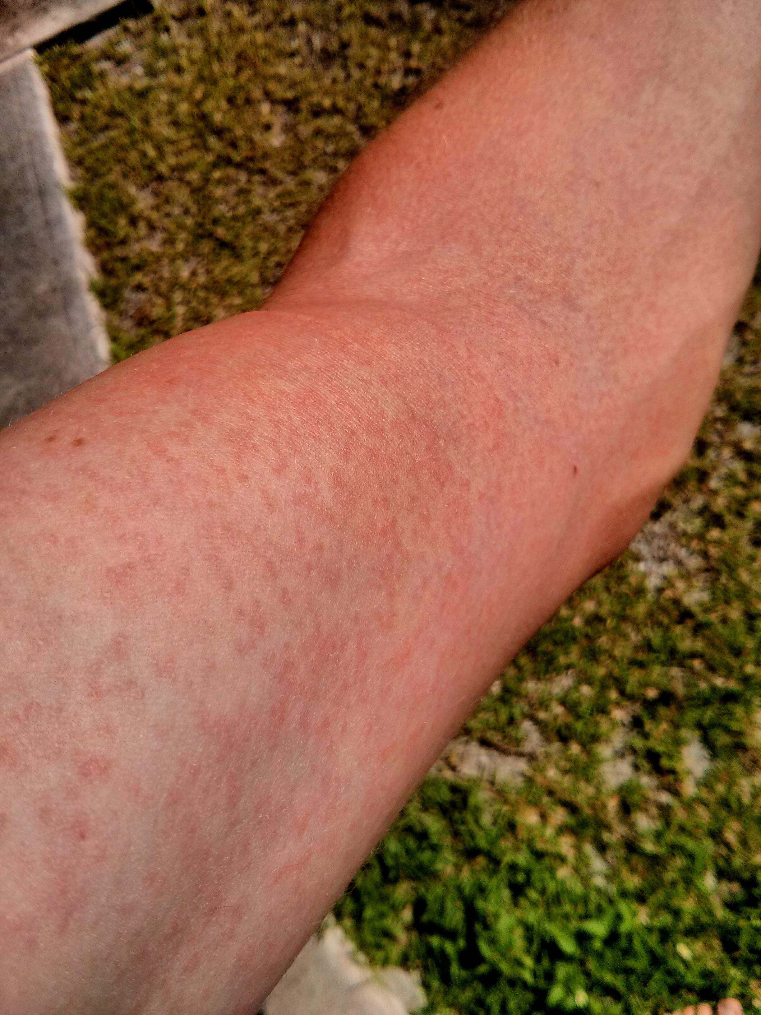 Online Dermatology - Zika Virus (Rash) - First Derm