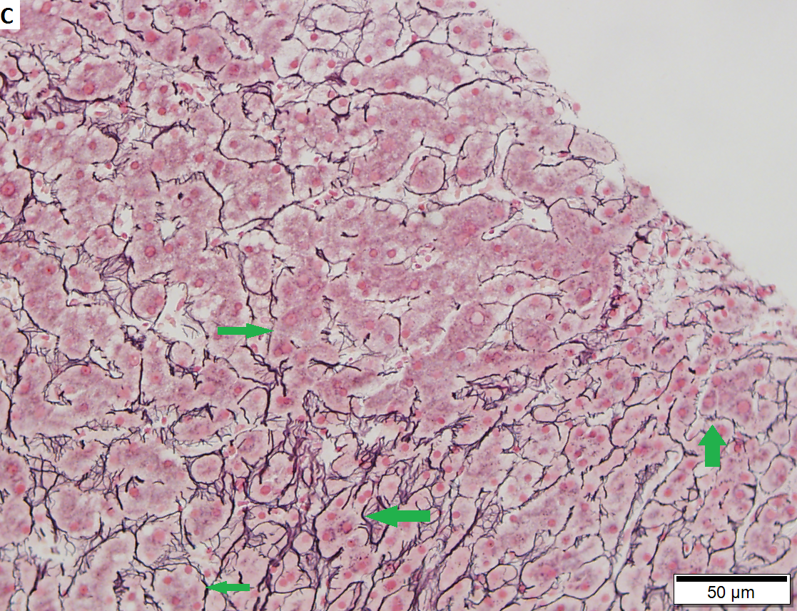 Cirrhosis with steatohepatitis in a 54 year old man