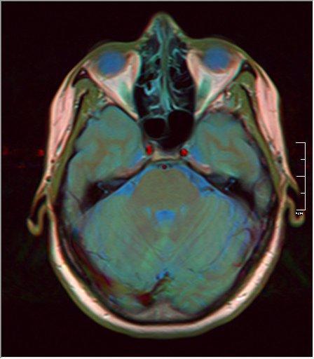 Brain MRI glioma 14.jpg