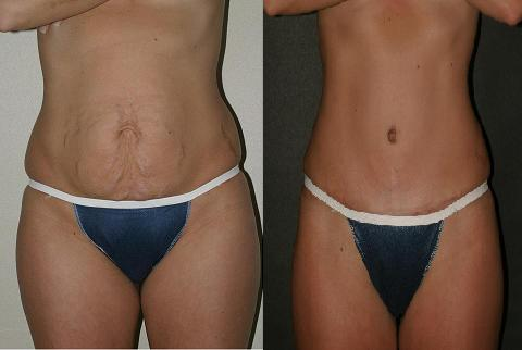 Plastic Surgery After Weight Loss Broowaha