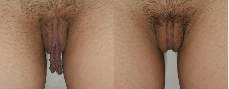 силикон в половых губах фото