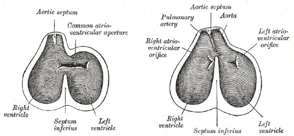 Aorticopulmonary Septum Wikipedia