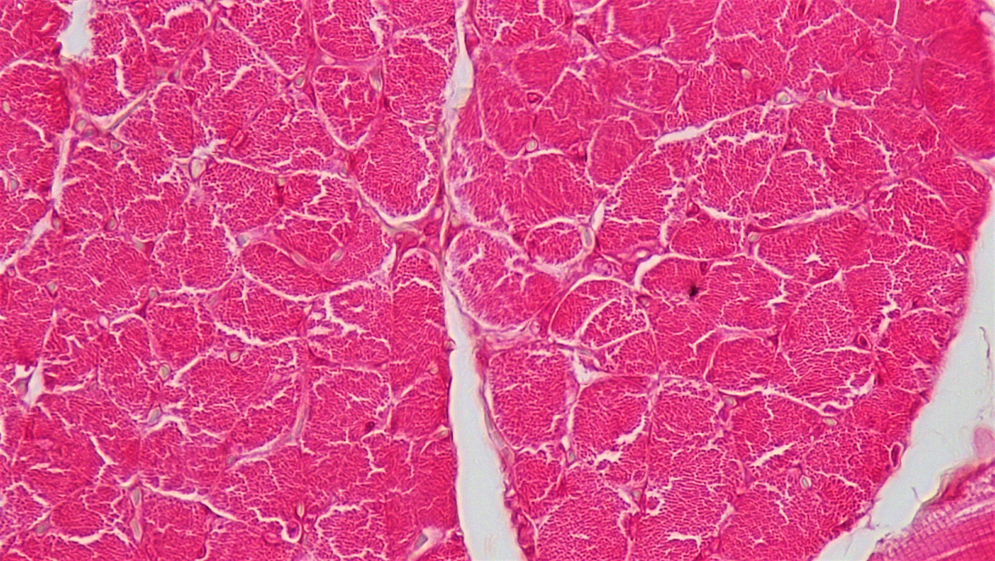 Filemuscle Tissue Cross Section Whole Skeletal Muscle 28089119578