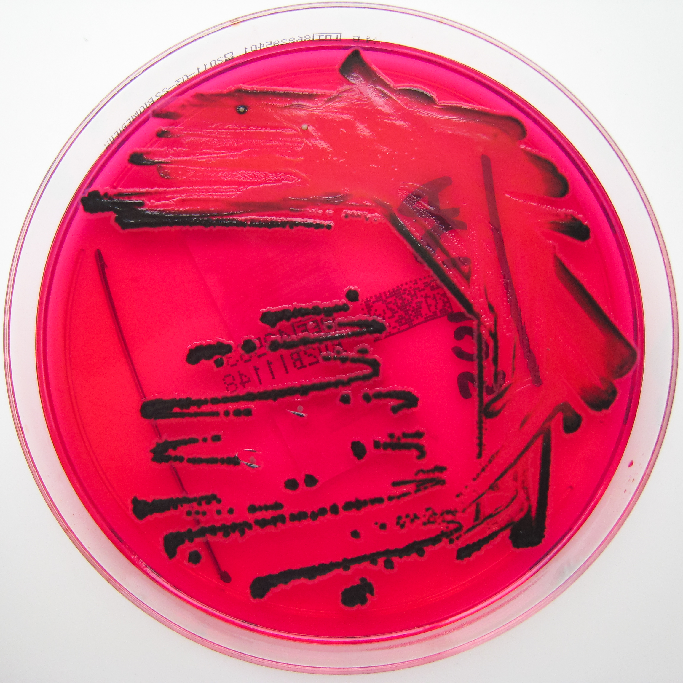 By Nathan Reading from Halesowen, UK (Salmonella species on X.L.D. agar.) [CC BY 2.0 (http://creativecommons.org/licenses/by/2.0)], via Wikimedia Commons
