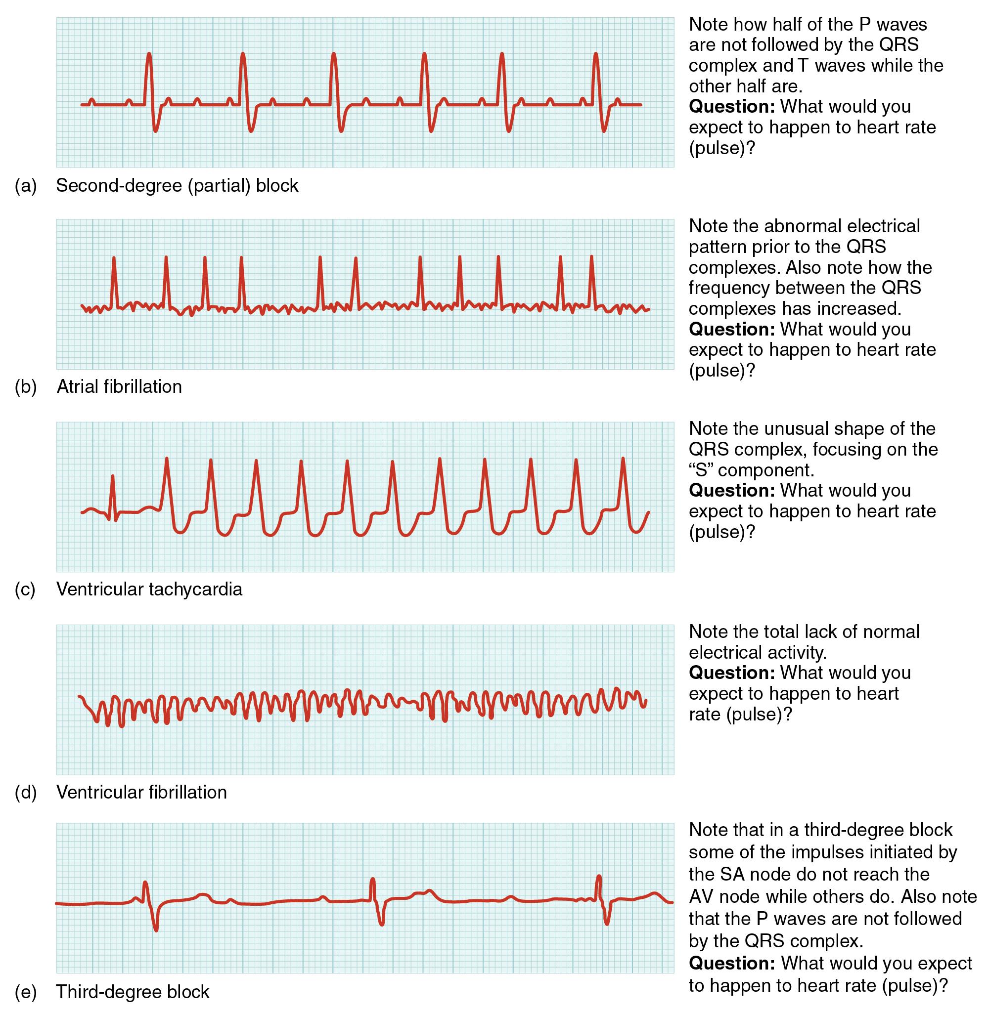 cardiac arrhythmia wikiwand block diagram practice problems #3