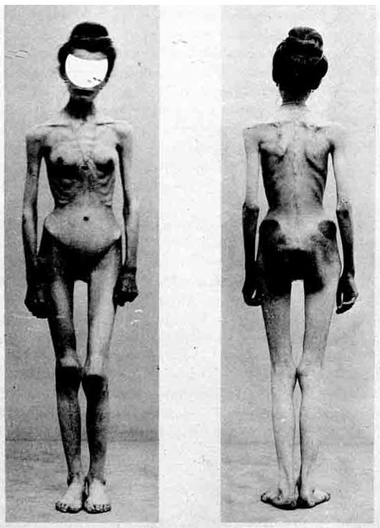 Disorder Eating Anorexia Nervosa