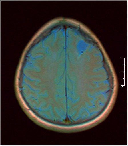 Brain MRI 0199 04.jpg