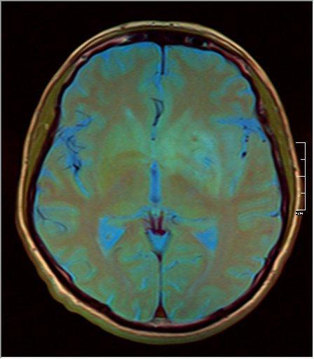Brain MRI 0211 10.jpg