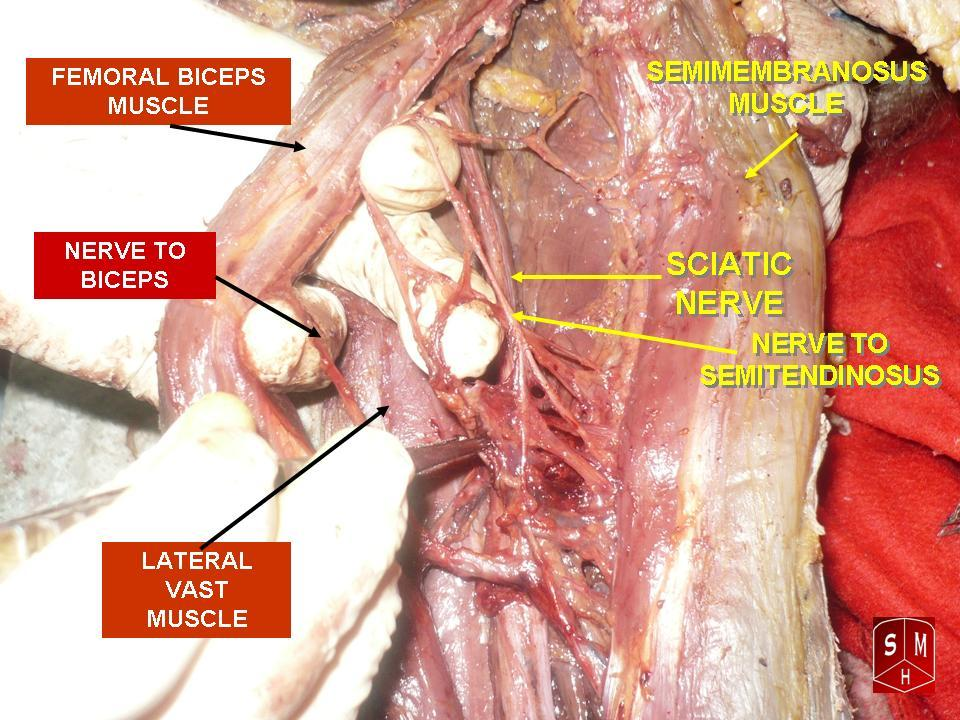 Filefemoral Biceps Muscleg Wikipedia